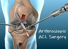 ACL Knee Surgery: Everything you need to know