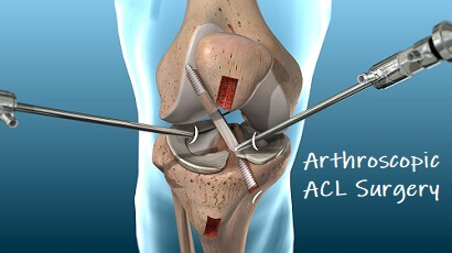 Arthroscopic ACL Surgery: What's it all about?