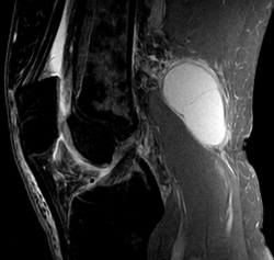 The white area on the right is a Bakers Cyst Knee, sitting just below the hamstrings