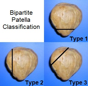 Bipartite Patella can be classified into 3 groups depending on the location of the unfused bone fragment