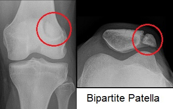 X-ray showing Bipartite Patella