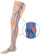 Blood clots may develop in leg veins after knee replacement surgery