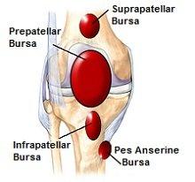 Bursitis can cause sharp knee pain