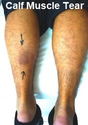 Calf tears are common knee injuries, particularly for runners