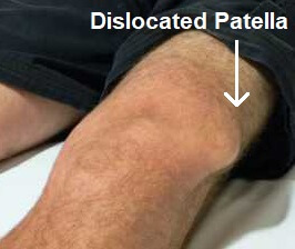 Dislocated Patella: Find out all about the common causes, symptoms, diagnosis and treatment for a kneecap dislocation