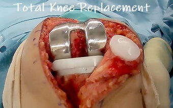 Total knee replacement surgery including patella replacement. Find out what surgery involves, the rehab process and how to make the best recovery