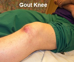 Gout causes severe knee pain. Symptoms usually come on suddenly over a few hours and the knee is extremely painful, red, hot and swollen.
