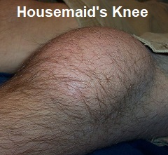 Housemaids knee causes swelling at the front of the knee around the patella
