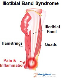 Iliotibial band syndrome typically causes pain on the outer side of the knee