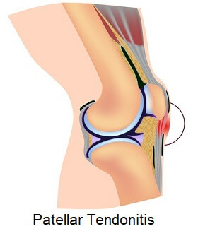 Patellar tendonitis is the result of repetition stress on the patellar tendon causing inflammation and degeneration