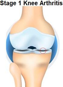 Stage 1 Knee Arthritis