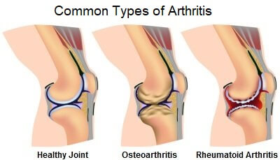 Arthritis in the knee will often cause knee stiffness