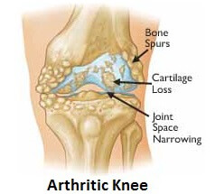 Arthritis is the most common cause of front knee pain in the over 50's