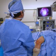 Arthroscopic knee surgery may be required when treating patellofemoral arthritis