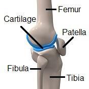 Damage to one or more of the knee bones can cause a sharp pain in the knee