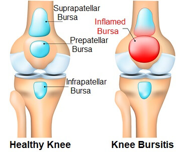 Knee Bursitis: Find out about the common causes, symptoms, diagnosis and treatment options