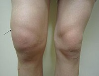 A swollen knee. Arrow points to smwelling just above patella