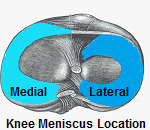 The knee meniscus are an important part of knee joint anatomy