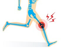 Knee Pain & Popping - What Causes Noisy Knees?