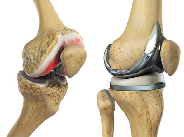 How to make the best Total Knee Replacement Recovery. Answers to all your questions.