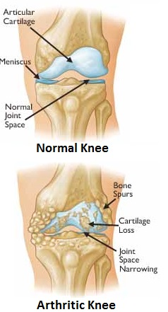 Osteoarthritis knee pain is caused by changes in the bone and cartilage lining the knee joint.  Here you can see the difference between and healthy and arthritic knee