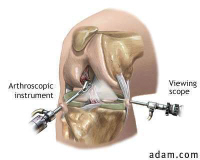 Knee arthroscopies can be done follow ACL knee injuries to have a look at the state of the ACL and to repair any damage if necessary