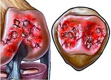 How to treat Kneecap Arthritis