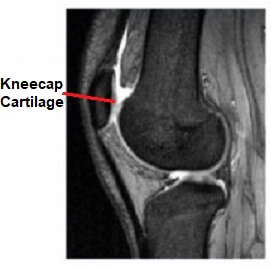 Chondromalacia Patella occurs when there is softening and damage to the cartilage lining the back of the kneecap.