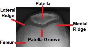 Diagram of the patellofemoral joint. The knee cap sits in the patellar groove with ridges on either side. Note that the medial ridge is slightly higher than the lateral ridge