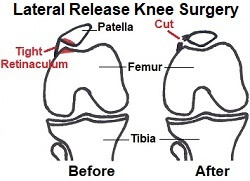 Lateral release knee surgery helps to realign the kneecap and reduce the risk of patellar dislocation