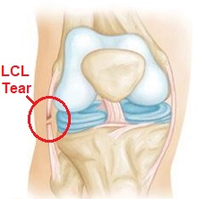 A sprain/tear of the lateral collateral ligament is a common cause of pain on the outer side of the knee aka lateral knee pain