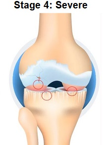 Stage 4 Knee Arthritis