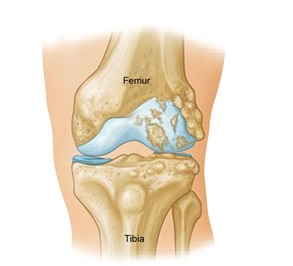 Lateral Knee Pain: Pain On Outside Of Knee - Knee Pain Explained