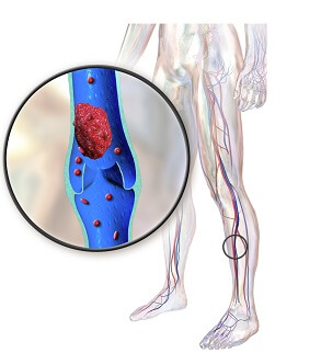 A deep vein thrombosis (DVT) is a potentially life-threatening cause of pain behind the knee and in the calf