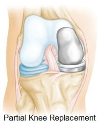Partial knee joint replacement