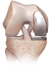Problems after a partial knee replacement are rare