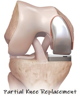 Partial Knee Replacement Surgery - Knee Pain Explained