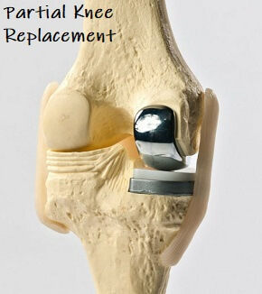 Partial Knee Replacement >> Partial Knee Replacement Indications Surgery Recovery