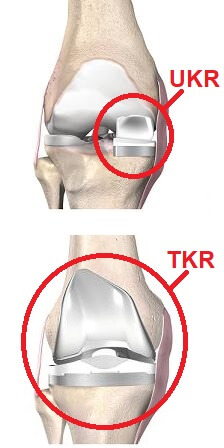 Total vs partial knee replacement surgery