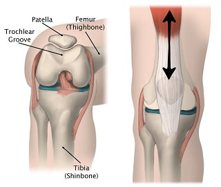 The patella (kneecap) sits in the trochlear groove on the front of the femur (thigh bone). As the knee moves, it glides up and down the groove