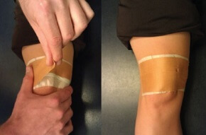 Taping the patella into a medial glide position helps to stretch out the lateral retinaculum and hold the kneecap in the correct place