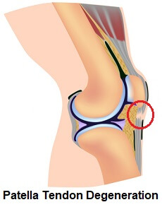 Patella tendonitis is degeneration, or wear and tear, of the patella tendon, just below the kneecap