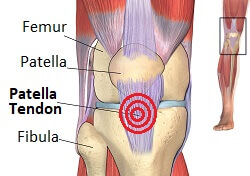 Patellar tendonitis causes pain just below the kneecap