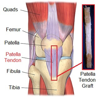 Patellar tendon graft used in ACL reconstruction surgery