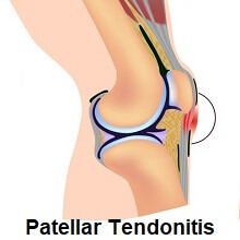 Tendonitis, inflammation of the tendon, can cause knee stiffness