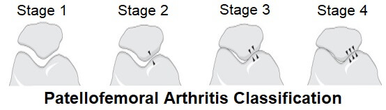 The four different stages of patellofemoral arthritis