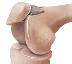Patellofemoral joint replacement