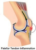 Patellar tendonitis can cause knee pain when bending