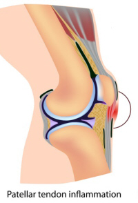 Patellar tendonitis can develop after ACL surgery, particularly if you have had a patellar tendon graft.