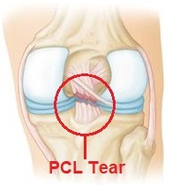 The posterior cruciate ligament gets damaged when it is overstretched